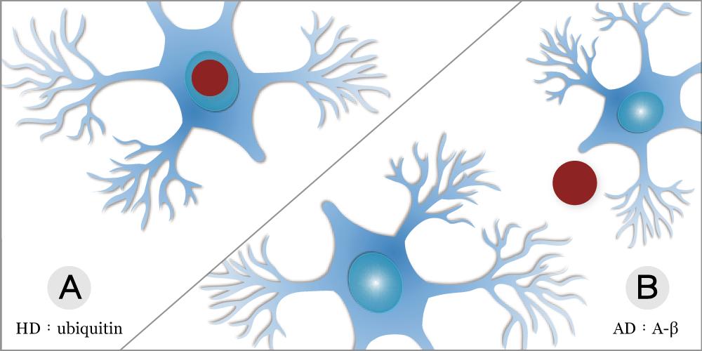 不同神經退化疾病中,神經細胞都有蛋白質不正常堆積的情形資料來源│Christopher A Ross & Michelle A Poirier, Nature Medicine 10, S10 - S17 (2004)(圖│研之有物改編)