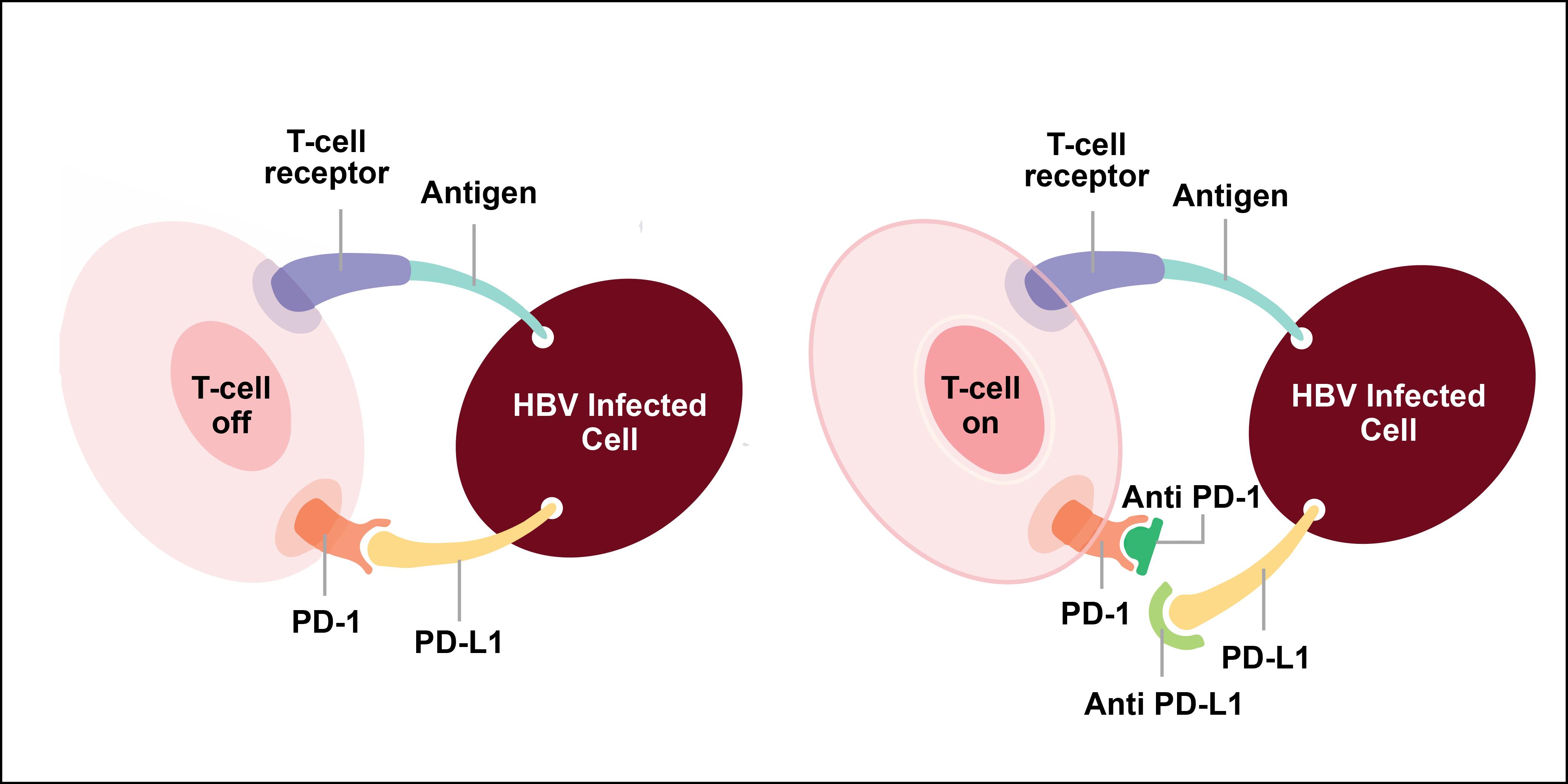 (左)HBV 感染細胞可透過表面的 PD-L1 連結 T 細胞表面的 PD-1,抑制 T 細胞。(右)透過 PD-1 抗體及 PDL-1 抗體阻斷連結, T 細胞可以保持活化,發揮免疫功能。資料來源│https://www.smartpatients.com 圖說重製│林任遠、張語辰