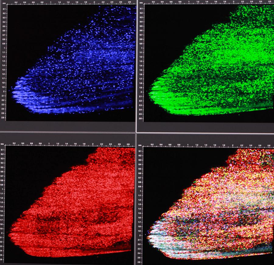 Skinbow:將紅、綠、藍(光的三原色)螢光蛋白標誌疊合之後,可以產生上百種不同顏色來標誌不同的表皮細胞,讓同個細胞在組織再生的過程中,能被長時間追蹤觀察。 攝影│張語辰