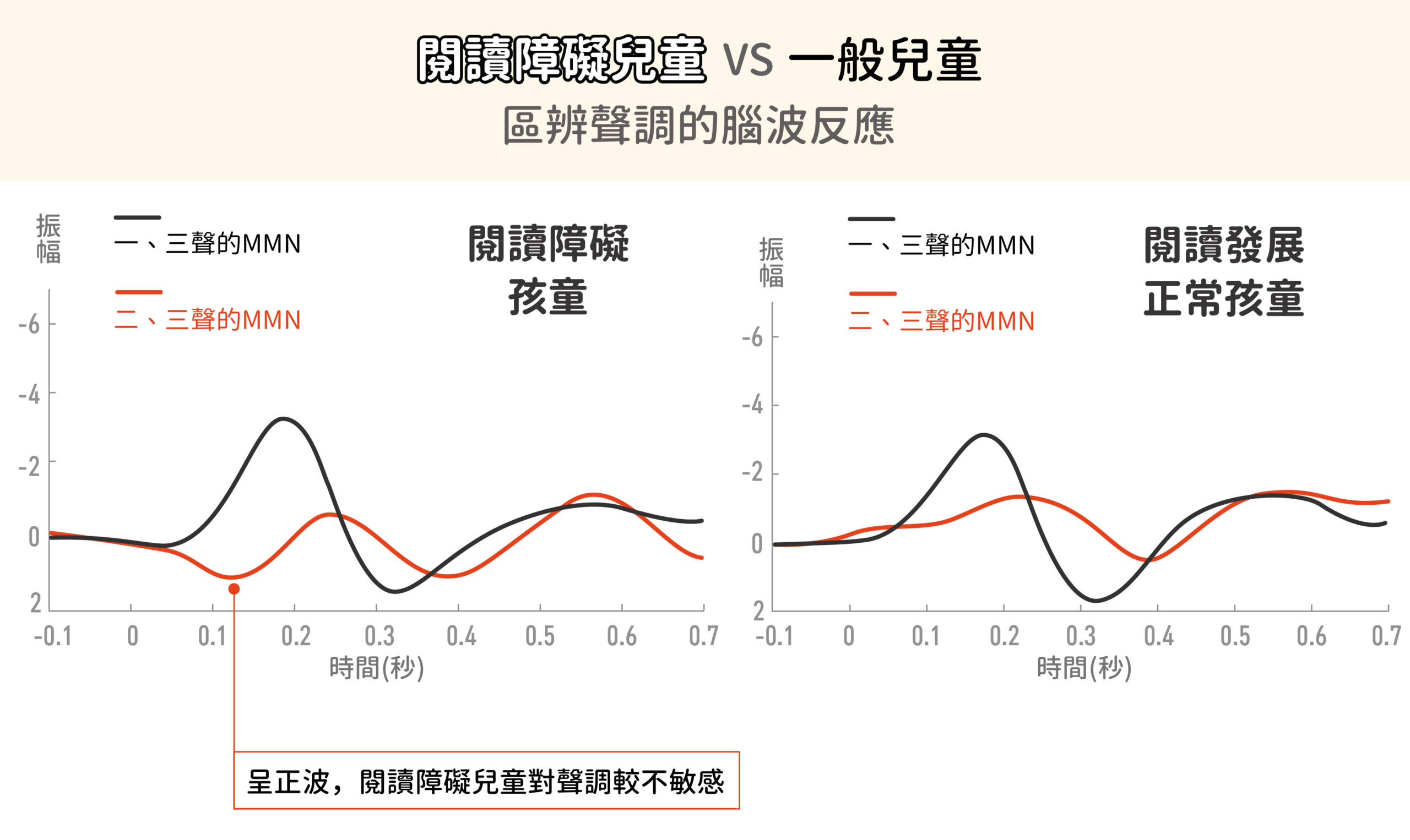 兩者在一、三聲調的 MNN 差別不大。但對於二、三聲就有差別,閱讀障礙兒童的振幅在 200 毫秒之前幾乎是正波,這顯示他們的聲調敏感度較不好。資料來源│李佳穎