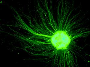 陳俊安團隊從小鼠胚胎幹細胞 (ES cell) 培養的運動神經細胞。在培養皿中沒有肌肉可抓,運動神經元的軸突四處延伸。 圖片來源│陳俊安提供