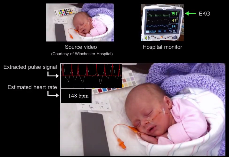 脈博訊號放大 150 倍的影像,可以透過血液流經臉部的膚色變化頻率,推估嬰兒脈博的速率。 圖│Revealing Invisible Changes In The World