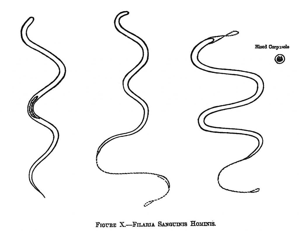 萬巴德手繪的絲蟲圖。 資料來源│《帝國的醫師:萬巴德與英國熱帶醫學的創建》
