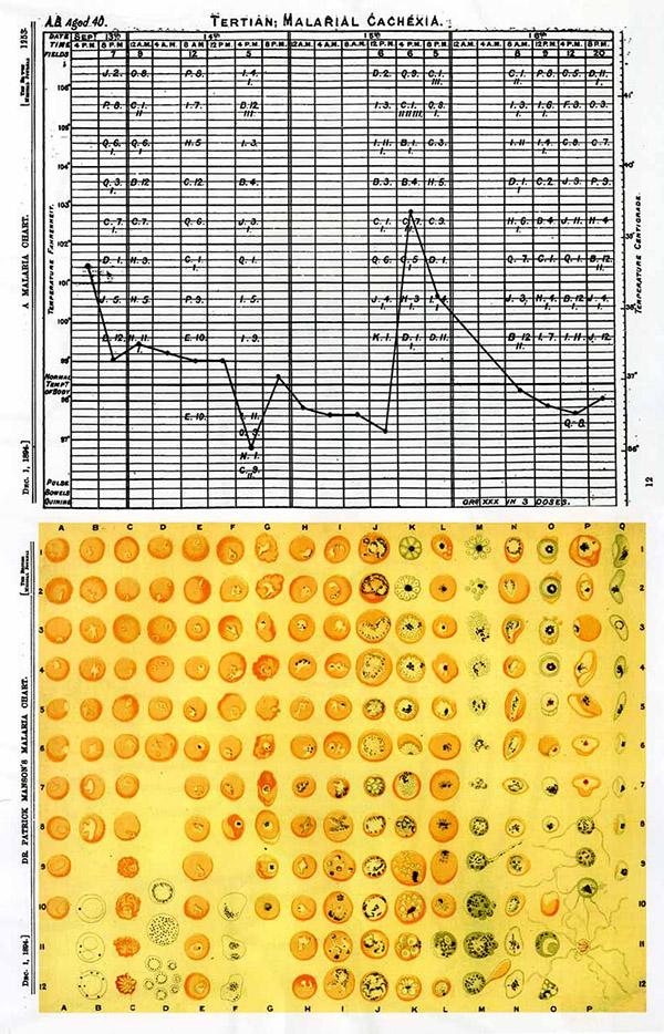 李尚仁研究萬巴德的醫療史,看見萬巴德建立標準化的圖表。上圖為紀錄瘧疾與體溫的關係,下圖為顯微鏡下瘧疾原蟲的分類。圖│《帝國的醫師:萬巴德與英國熱帶醫學的創建》