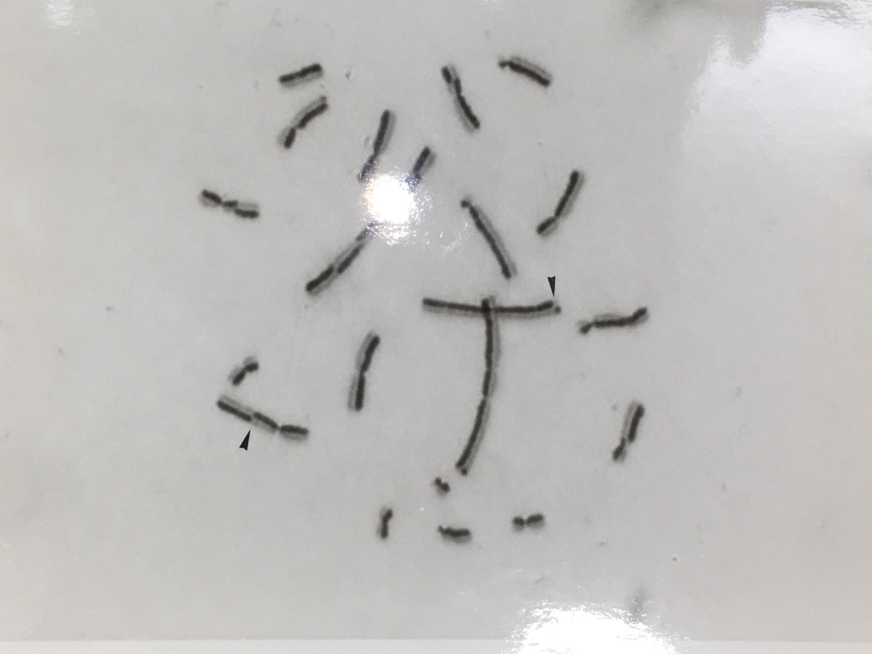 顯微鏡下,姊妹染色分體互換基因片段的結果 (黑色箭頭指示處)。圖│嚴愛鑫