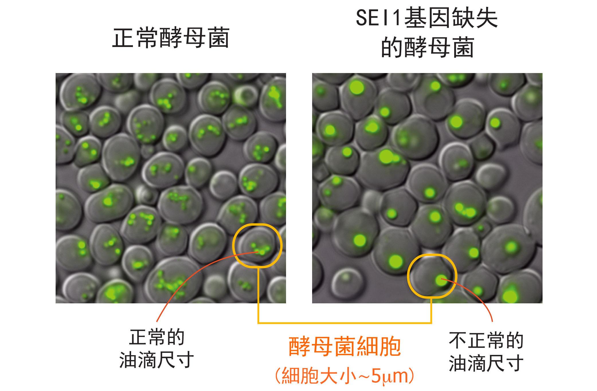 左圖為正常酵母菌細胞,右圖為酵母菌單一基因 SEI1 的突變株,右圖明顯可見:細胞中綠色部分標示的油滴尺寸變大、且數量變少。圖│王昭雯