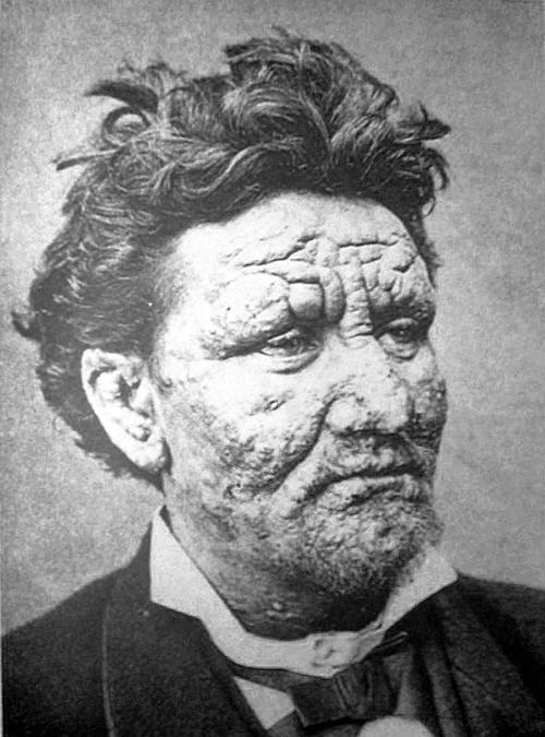 麻風病會傷及顏面、皮膚,嚴重者可能引發潰爛,自古以來即受到強烈排斥。中國實施大規模隔離,為避免民眾反彈,麻風聚落通常安排在高山上、山谷中,與世隔離,讓消除汙名變得更加困難。圖片為感染麻風病的患者,皮膚明顯受損。圖│Pierre Arents